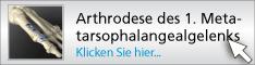 1stmetatarsalphalangealjointarthrodesis